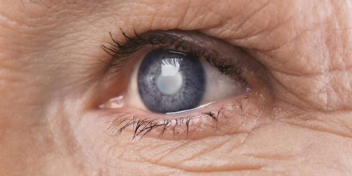 Đục thủy tinh thể - căn bệnh được trẻ hóa do con người sử dụng nhiều nguồn ánh sáng xanh-1